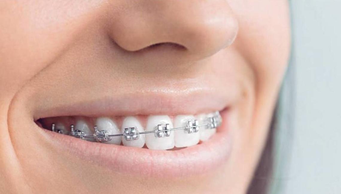 Ortodoncia de Brackets